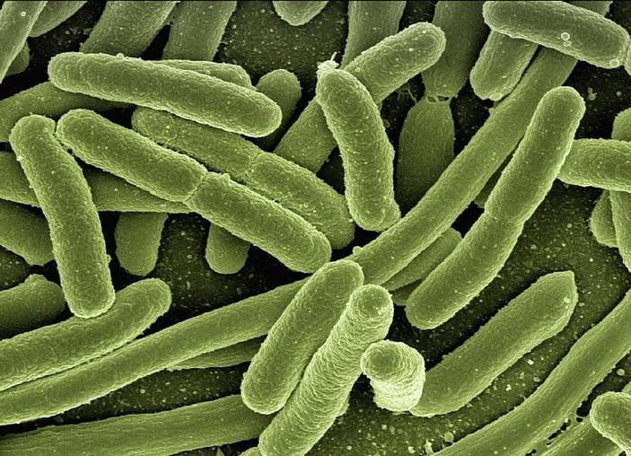 ¿Qué es la Legionella y cómo se produce?